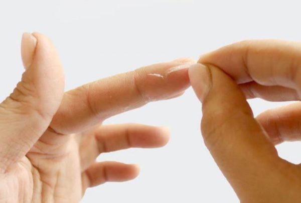 Как убрать клей «Момент» с рук и ногтей в домашних условиях: бытовые средства