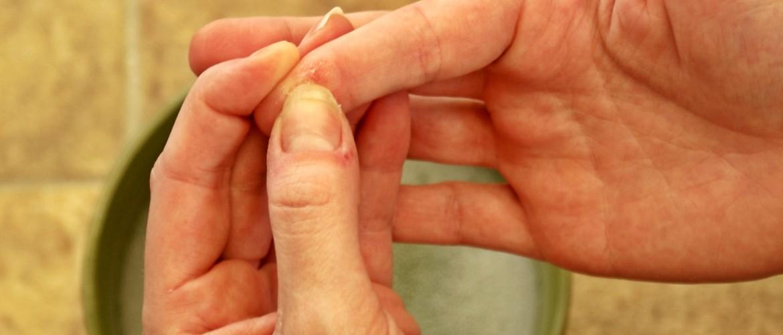 Как убрать клей «Момент»с рук? Как удалить и смыть с кожи, чем отмыть в домашних условиях, как оттереть клей с пальцев
